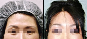 Lower Eyelid(Blepharoplasty) Surgery before 650653