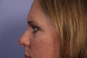 Eyelid Surgery after 306450