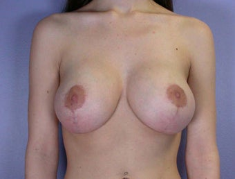 Breast Lift after 285360
