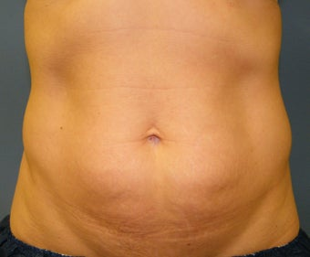 CoolSculpting before 621991