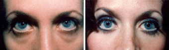 Blepharoplasty-Mid Face before 319402