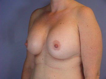 Circumareolar Breast Lift with Breast Implants after 309738