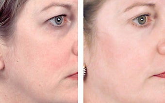 Facial chemical peel with 35% TCA before 6584