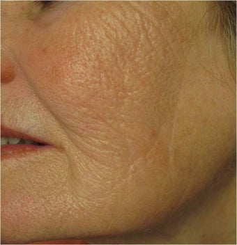 Evolastin- Non Surgical Lift after 498659