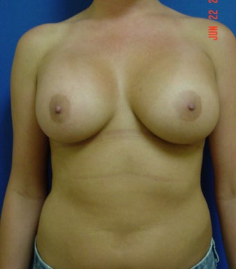 Breast Augmentation after 347972