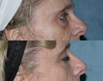 Fraxel repair with C02/Erbium lasers for upper lip wrinkles before 104332