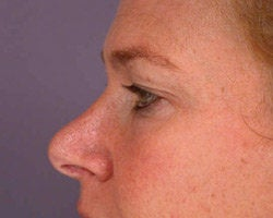Eyelid Surgery before 280385