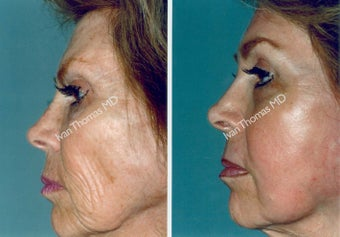 Non-Surgical Face Lift- Exoderm  before 242977