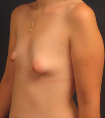 Reconstruction of Tubular Breast Deformity 555981