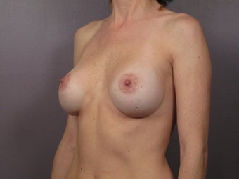 Breast Implant Revision before 622833