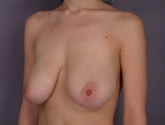 Breast Lift before 285361