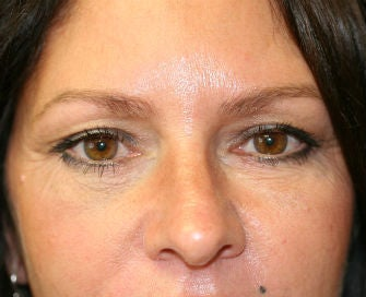 Lower eyelid blepharoplasty after 378916