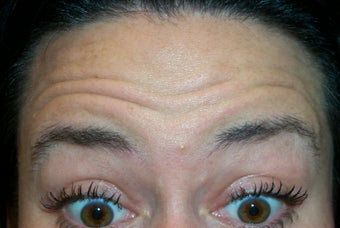 Botox Forehead before 382114