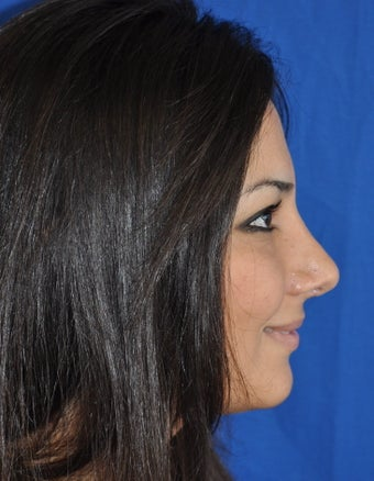 Rhinoplasty after 374395