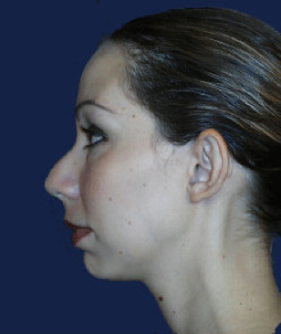 chin implant before 476634