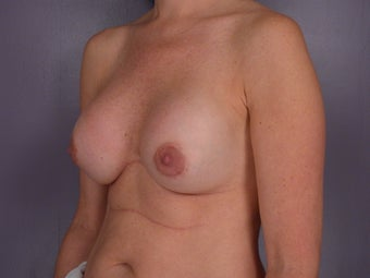 Breast Revision Surgery  before 307256
