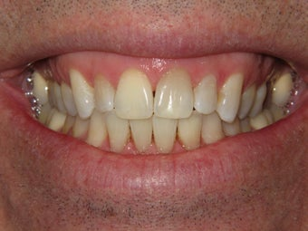 Whitening with walking bleach after 293325