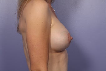 Breast Lift / Breast Augmentation after 291169