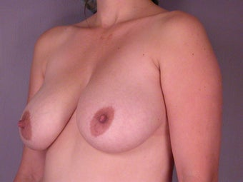 Breast Lift  before 311055
