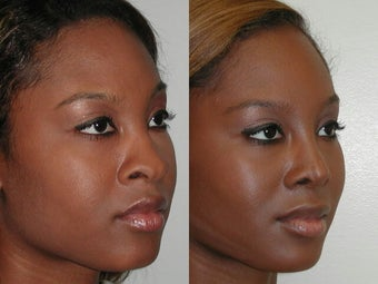 African American Rhinoplasty after 210166