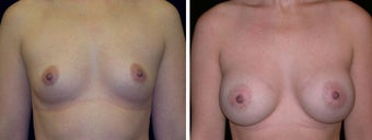 26 year old female, breast augmentation San Francisco, California before 628374