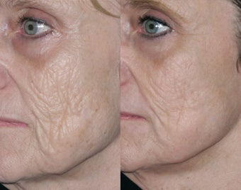Fraxel repair with C02/Erbium lasers for upper lip wrinkles before 104311