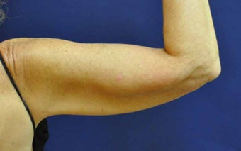 Liposuction Upper Arm after 513445