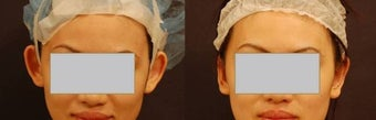 Ear pinning Otoplasty before 584397