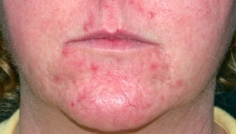 Vbeam for rosacea before 374537