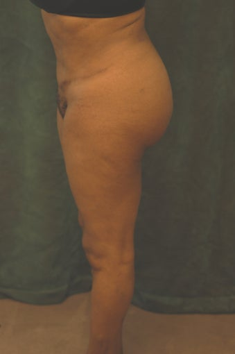 Women's Buttocks Augmentation  after 518126
