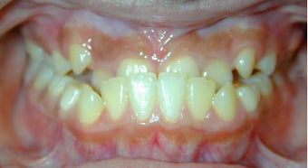Teen Orthodontic Treatment (case #3MM) before 224584
