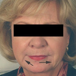 Oral Commissures (marionette lines) with Restylane Treatment before 93346