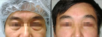 Lower Eyelid(Blepharoplasty) Surgery before 650696