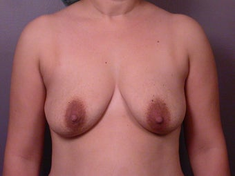 Breast Lift / Breast Augmentation  before 291003
