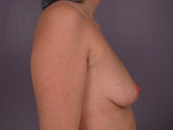 Breast Lift / Breast Augmentation  before 290965
