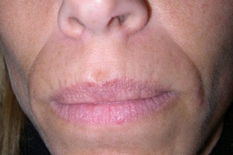 Radiesse/Juvederm before 100335