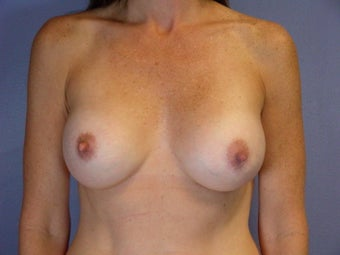 Breast Revision after 307230