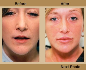 Lip Augmentation before 309540