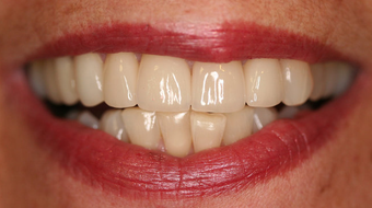 Full Porcelain Crowns after 145684