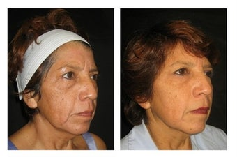 Non-Surgicial Facelift after 610411