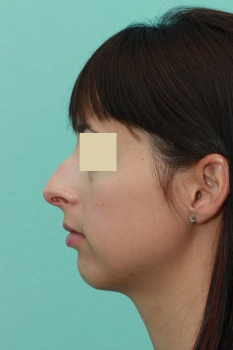 Open Septorhinoplasty before 134620