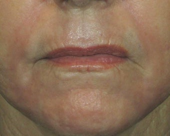 Ridding Lip Lines & Wrinkles with C02 Laser after 628481