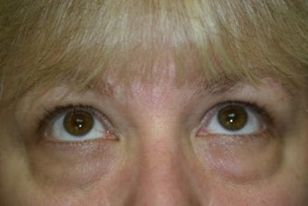 Lower Blepharoplasty 551146