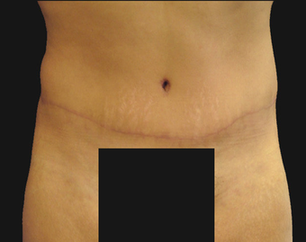 Abdominoplasty after 458932