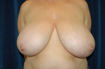Bi-lateral Breast Reduction before 281766