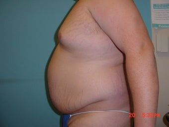 liposuction before 309948