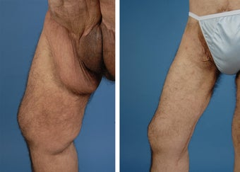 Thighplasty after 335981