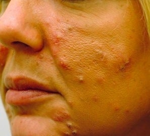 Acne treatment before 376128