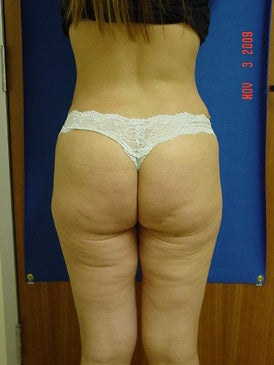 Brazilian Butt Lift/Liposuction after 393405