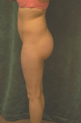 Women's Buttocks Augmentation  after 518136